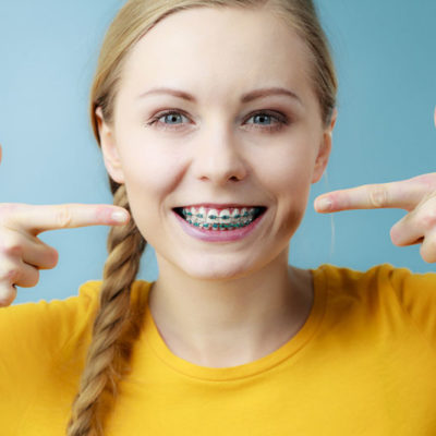 5 Tips for Adults Who Have Braces